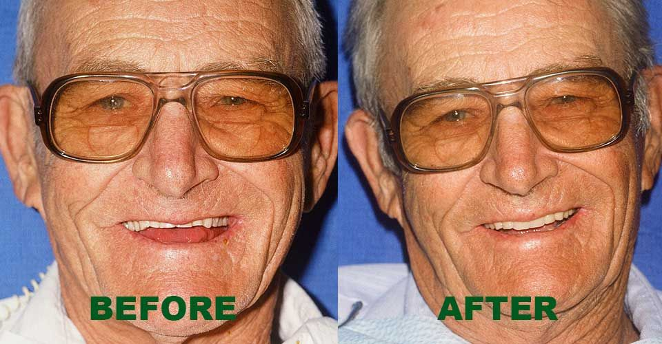 complete denture before and after