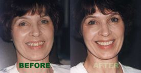 porcelain veneers before and after 4