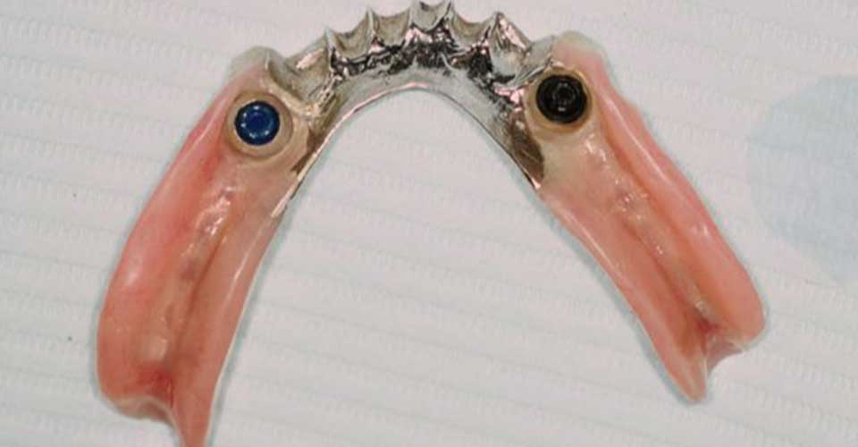 Lower partial denture showing implant attachments.