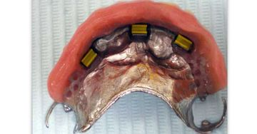 Partial denture with retention clips.