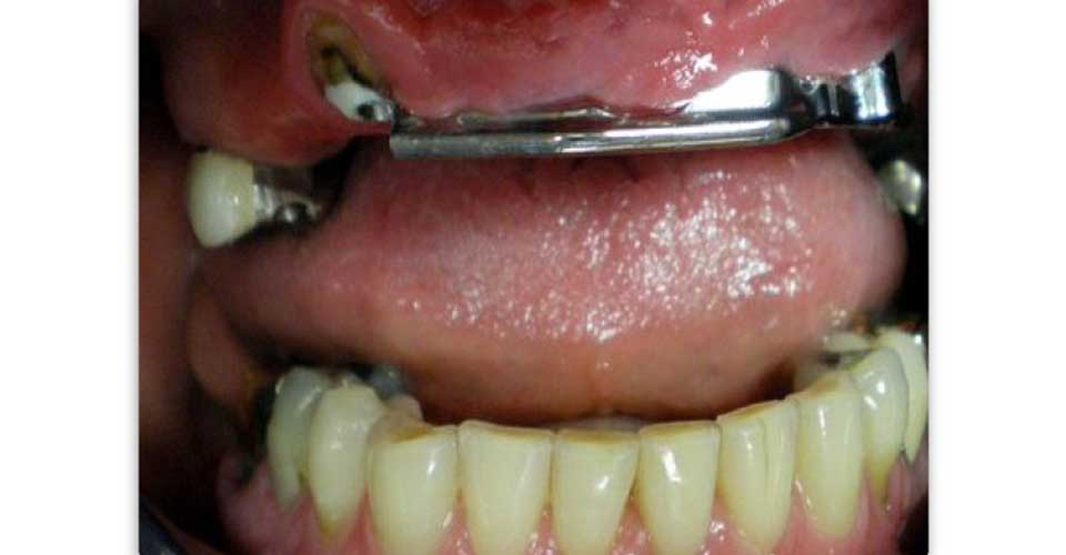 Retention bar attached to upper implants.