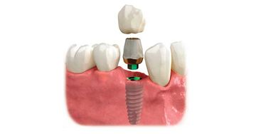 See here an implant with a porcelain crown
