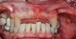 Missing front teeth before treatment
