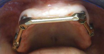Retention bar anchored to 4 upper implants.