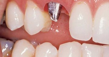 Implant in right canine position before porcelain crown is anchored to it.
