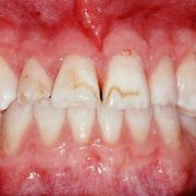 porcelain veneers 3